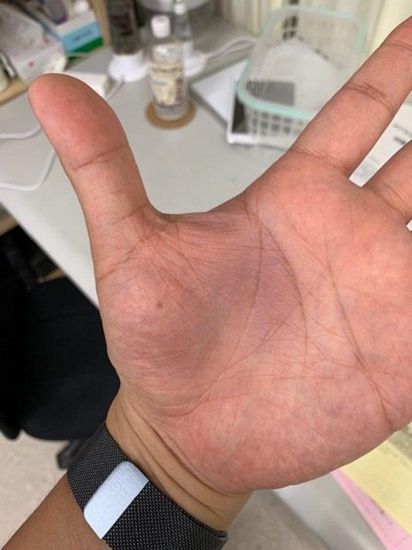 周南中央整骨院コラム:『突き指』